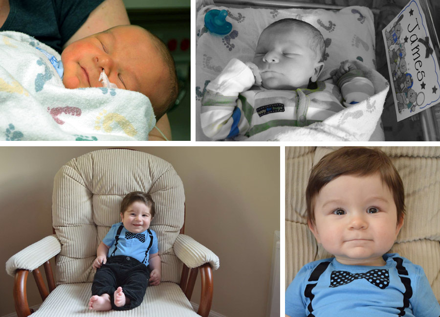 real life stories of children with congenital hyperinsulinism