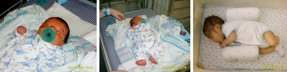 real world stories about congenital hyperinsulinism